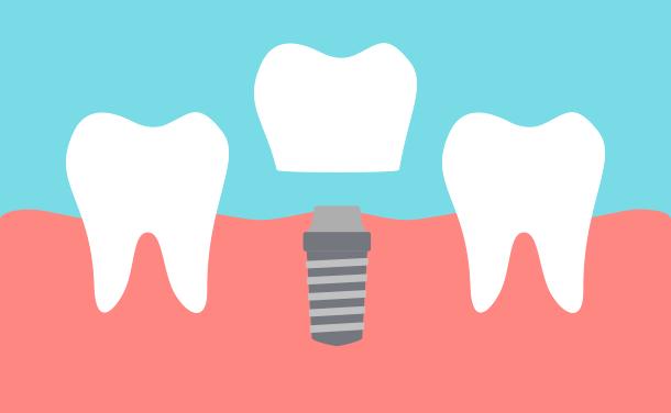 歯を1本失った方の場合